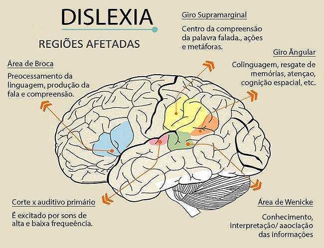 dislexia-no-cerebro.jpg