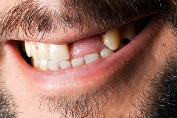 disease-tooth-loss-1.jpg